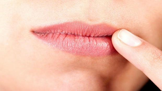 cheilitis on the lips
